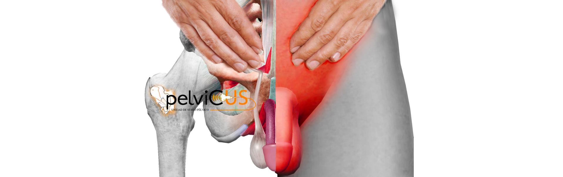 causas en el dolor pélvico