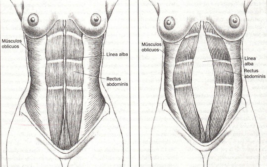 Diastasis abdominal embarazo que hacer
